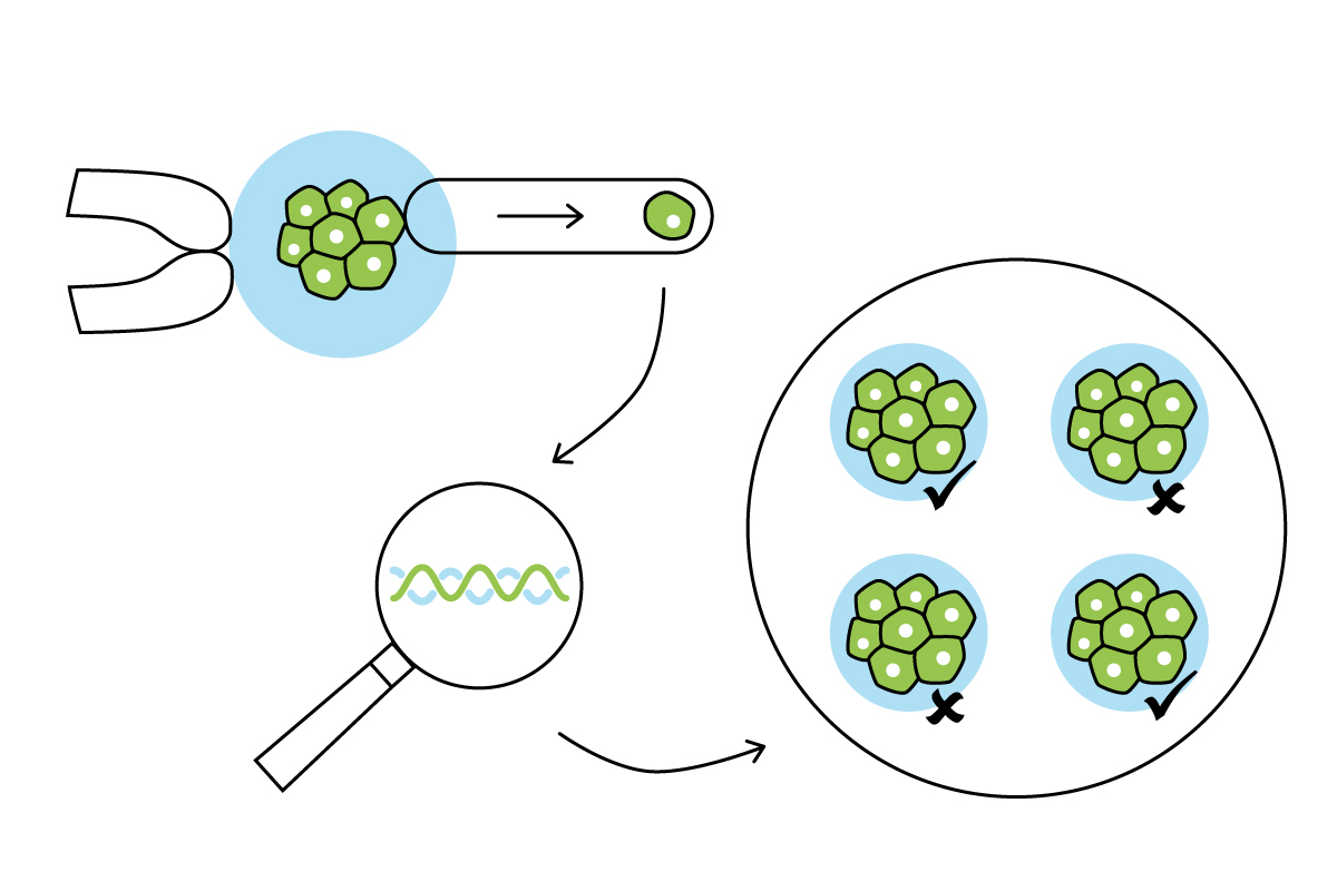 Preimplantation Genetic Testing for IVF
